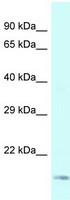 Western blot - Anti-Gemin 6 antibody (ab118700)