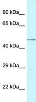 Western blot - Anti-CHI3L2 antibody (ab118701)