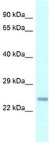 Western blot - Anti-CDKN3 antibody (ab118702)