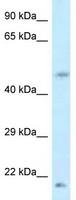 Western blot - Anti-eEF1A1 antibody (ab118703)