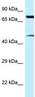 Western blot - Anti-Cadherin 22 antibody (ab118704)