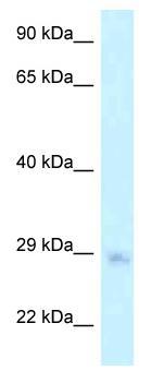 Western blot - Anti-MTG1 antibody (ab118707)