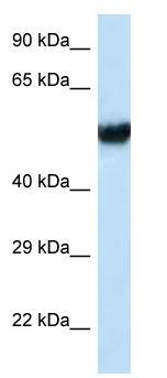 Western blot - Anti-CMG1 antibody (ab118708)