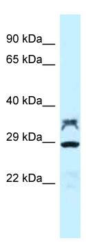 Western blot - Anti-PP2A alpha + beta antibody (ab118709)