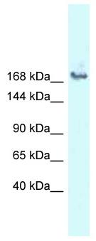 Western blot - Anti-SNRNP200 antibody (ab118713)