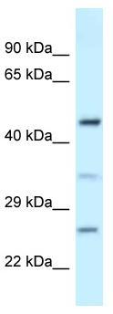 Western blot - Anti-MED18 antibody (ab118714)