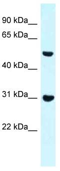 Western blot - Anti-FBP17 antibody (ab118715)