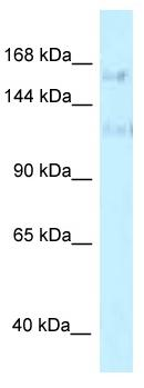 Western blot - Anti-FNBP3 antibody (ab118717)