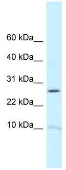 Western blot - Anti-RPL39 antibody (ab118718)