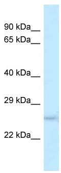 Western blot - Anti-DUSP19 antibody (ab118720)