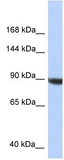 Western blot - Anti- KIAA1549  antibody (ab118721)