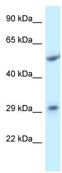 Western blot - Anti-ITM2C antibody (ab118723)