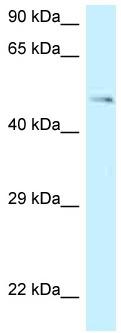 Western blot - Anti-GPR 150 antibody (ab118726)