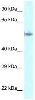 Western blot - Anti-GORASP2 antibody (ab118728)