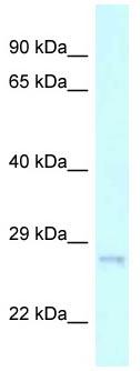 Western blot - Anti-CHMP2A antibody (ab118729)