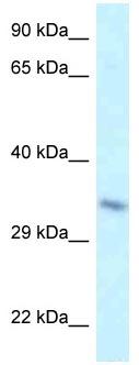 Western blot - Anti-TAF8 antibody (ab118730)