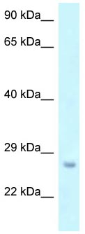 Western blot - Anti-OSTF1 antibody (ab118732)
