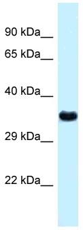 Western blot - Anti-Cathepsin Z antibody (ab118733)