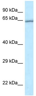 Western blot - Anti-RASGRP 4 antibody (ab118735)
