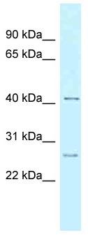 Western blot - Anti-CCNK antibody (ab118736)