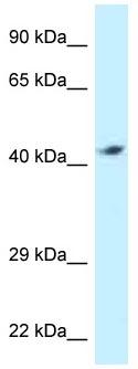 Western blot - Anti-ATP6V1C2 antibody (ab118738)