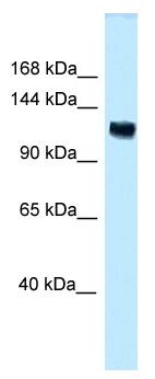 Western blot - Anti-ANKS1A antibody (ab118740)