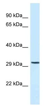 Western blot - Anti-C18orf1 antibody (ab118741)