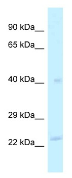 Western blot - Anti-MRPL40 antibody (ab118742)
