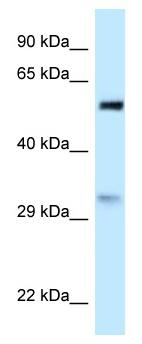 Western blot - Anti-PNO1 antibody (ab118743)