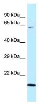 Western blot - Anti-DNAJC11 antibody (ab118744)