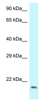 Western blot - Anti-DCTN3 antibody (ab118745)