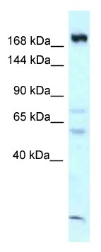 Western blot - Anti-CAMSAP1 antibody (ab118747)