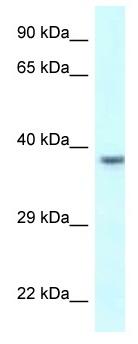 Western blot - Anti-Uroplakin IIIB antibody (ab118748)