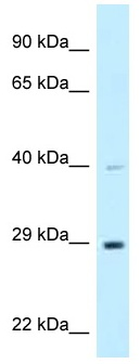 Western blot - Anti-DNAJC9 antibody (ab118752)