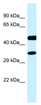 Western blot - Anti-RDH13 antibody (ab118753)