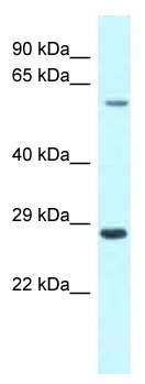 Western blot - Anti-CPNE3 antibody (ab118754)