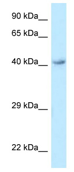 Western blot - Anti-GPCR GPR120 antibody (ab118757)