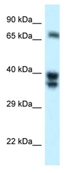 Western blot - Anti-SH3BP1 antibody (ab118760)