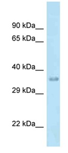 Western blot - Anti-MTFR1 antibody (ab118761)