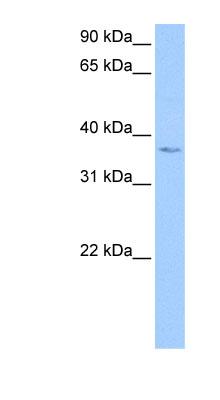 Western blot - Anti-LOC441488 antibody (ab118767)