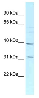 Western blot - Anti-MRPL46 antibody (ab118776)