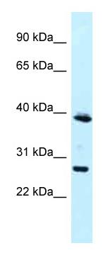Western blot - Anti-MAGEF1 antibody (ab118785)