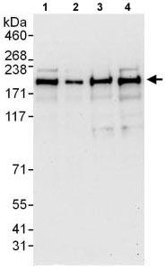 Western blot - Anti-INO80 antibody (ab118787)