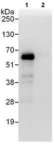 Immunoprecipitation - Anti-HIP55 antibody (ab118794)