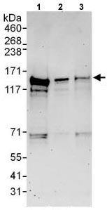 Western blot - Anti-CEP128 antibody (ab118797)