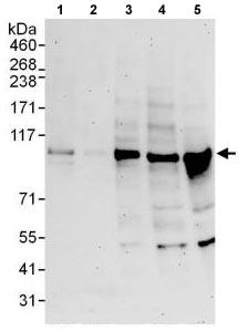 Western blot - Anti-EXOC1 antibody (ab118798)