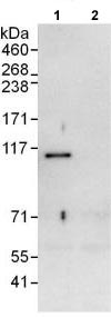 Immunoprecipitation - Anti-CHD1L antibody (ab118799)