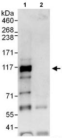 Immunoprecipitation - Anti-BICD1 antibody (ab118802)