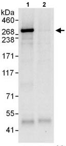 Immunoprecipitation - Anti-Desmoplakin I+II antibody (ab118804)