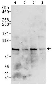 Western blot - Anti-MUM1 antibody (ab118808)